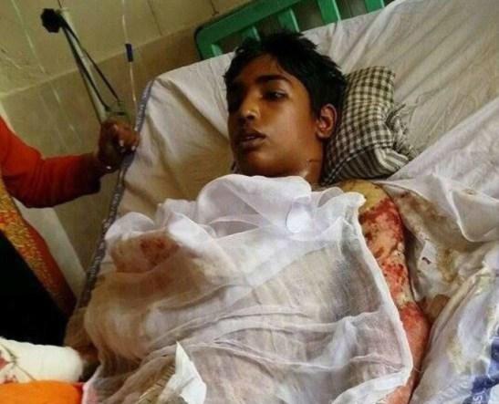 Paquistão, Muçulmanos jogam fogo em jovem de 14 anos pelo fato de ser cristão.